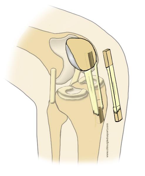 traitements genou
